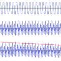 Síntesis (10): fundamentos de síntesis sustractiva (III)